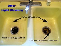 Removing Kitchen Sink Stains & Preventing Them From Coming Back