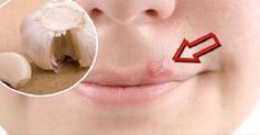 Rimedi fatti in casa per alleviare velocemente l'herpes labiale - Vivere Più Sani