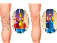 Many Americans have some form of varicose veins. Processed food, lack of physical activity, obesity, nutritional deficiencies and prolonged sitting or standing can burden the veins. Varicose veins are blood vessels that have become enlarged and tortuous. Varicose Veins Causes, Varicose Vein Remedy, Varicose Veins Treatment, Aloe Vera, Garlic Oil, Blood Vessels, Natural Home Remedies, Healthy Tips, Healthy Food