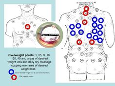 Cupping for weight loss. Benefits and harms of cupping stomach massage for weight loss. Why Cupping Is Good For Weight Loss. Cupping Points, Hijama Cupping, Meridian Acupuncture, Acupuncture Points, What Is Cupping Therapy, Hijama Points, Benefits Of Cupping, Chinese Cupping, Massage