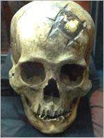 Трепанированный череп. За много веков до прихода в Перу современной медицины у инков зародилась нейрохирургия.