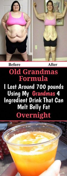 Old Grandmas Formula I Lost Around 700 pounds Using My Grandmas 4 Ingredient Drink That Can Melt Belly Fat Overnight! - Go Fit Stay Fit Melt Belly Fat, Lose Belly Fat, Lose Fat, Weight Loss Drinks, Weight Loss Smoothies, Junk Food, Weight Gain, How To Lose Weight Fast, Losing Weight