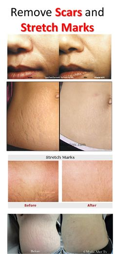 REMOVE SCARS AND STRETCH MARKS EFFECTIVELY