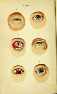 """"""" Plate XI. Fig 61. Erysipelas of the lids in a woman of 40 years of age. These are seen to be swollen, puffy, and oedematous. Fig 62. Gonorrhoeal ophtalmia in its acute stage. Fig 63. Diphtheritic conjunctivis. The patient was suffering intense pain. Fig 64. Epithelial cancer of the lids at their outer angle. Fig 65. Severe blow upon the eye, causing rupture of the sclerotic and dislocation of the lens. Fig 66. Dislocation of the lens into the anterior chamber."""" - 1867."""