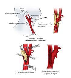 Boala arteriala periferica - Ateromatoza carotidiana