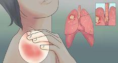 A női tüdőrák figyelmeztető jelei! Ne legyints rájuk! - MindenegybenBlog Signs Of Lung Cancer, Cancer Sign, Squamous Cell Carcinoma, Persistent Cough, Salud Natural, Types Of Cancers, Cancer Types, Shortness Of Breath, Zodiac Cancer