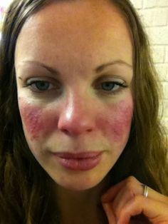 Fifty Shades of Rosacea: Drastic diet change: One month in...