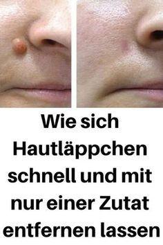 Wie sich Hautläppchen schnell und mit nur einer Zutat entfernen lassen #Hautläppchen #entfernen #schnell