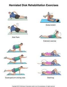 Summit Medical Group - Herniated Disk Exercises