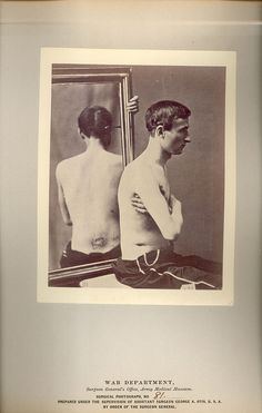RECOVERY AFTER A PERFORATING GUNSHOT WOUND OF THE ABDOMEN  PRODUCING ARTIFICIAL ANUS.    DEICHLER, G.P.    LT    Company I    69th    PENNSYLVANIA VOLUNTEERS    Dr. SEARLE, CHARLES A.    Battle of HATCHER'S RUN, VA, MARCH 1865
