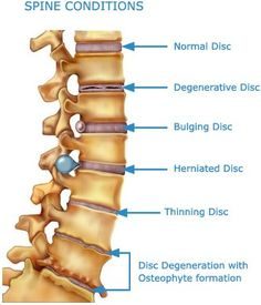 """Spinal Manipulation Therapy, also known as the """"adjustment"""", is the foundation of chiropractic therapy. Spinal joints that are """"locked up"""", fixed or not moving correctly can affect your health by irritating nearby nerve tissue. Adjustments help restore nervous system integrity and can improve the healing process."""