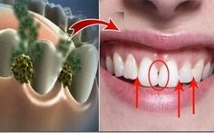 ELIMINATE BAD BREATH IN 5 MINUTES! THIS REMEDY WILL DESTROY ALL THE BACTERIA THAT CAUSE BAD BREATH