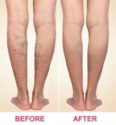 Vein Treatment Clinic Texas - Whether you need spider vein removal or varicose vein treatment, our Harvard trained local vein doctors are ready to help you. Book an appointment online! Varicose Vein Removal, Varicose Veins Treatment, Spider Vein Treatment, Holistic Approach To Health, Compression Stockings, Radiofrequency Ablation, Long Island, Exercise, Home Remedies