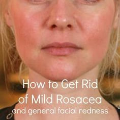 you need ot know about how to reduce redness in the skin as well as help cover it with makeup tips!everything you need ot know about how to reduce redness in the skin as well as help cover it with makeup tips! Dry Skin On Face, Face Skin Care, Skin Treatments, Red Face Remedies, Rosacea Remedies, Natural Remedies For Rosacea, Reduce Face Redness, Hair And Beauty, Home Remedies