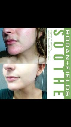 This is Ally. Look how her incredibly sensitive skin has improved dramatically since she starting using SOOTHE from Rodan + Fields. Thanks for sharing your results pics, Ally! If you or somebody you know suffers from any type of sensitive skin (general irritation/redness, rosacea, eczema) private message me to give SOOTHE a try risk-free with a FREE gift!