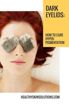 Dark Eyelids - How to Cure Hyperpigmentation
