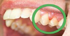 Φυσικές θεραπείες για ούλα που ματώνουν και δόντια που κουνιούνται