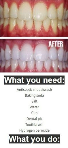 There are many people that are struggling with the problem of yellowish teeth, and feel uncomfortable every time they smile. Are you one of them? Regular cleaning and brushing is not enough to avoid the problem of stains on the teeth, and even though the whitening strips can be effective, they also cause painful sensitivity …