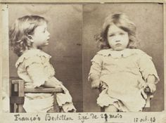 Mugshot of a 2-year-old Francois Bertillon, arrested for eating a basket of pears