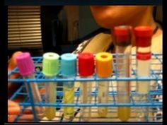 To Spin or not to Spin - July 14, 2016 - Thursday Morning phlebotomy Vlog http://tmiky.com/pinterest