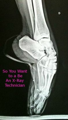 Information you need if you want to be an x-ray technologist
