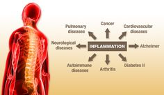 Inflammation has been linked to heart disease, obesity, diabetes, cancer. Alzheimer's and fibromyalgia, to name a few. Here are the top inflammatory foods. (Sugar, Vegetable Oils, Grains, and Food Additives)