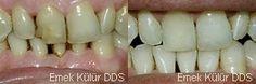 Beyazlatma ve bonding dolgu yöntemiyle dişler daha beyaz ve daha sağlıklı olabilir