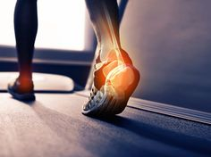 Pain at the back of your heel? Here's what to do - Runner's World