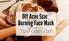 DIY Acne Scar Face Mask - Anti-fungal, anti-inflammatory face mask to remove and fade away those nasty looking acne scars!