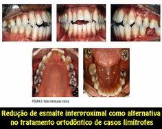 Redução de esmalte interproximal como alternativa no tratamento ortodôntico de casos limítrofes | OVI Dental