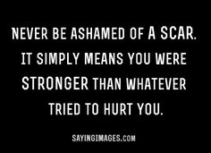 A scar simply means you're stronger than whatever tried to hurt you-LOVE THIS! Definitely hits home for me Inspirational Quotes Pictures, Great Quotes, Quotes To Live By, Me Quotes, Journey, Thats The Way, Beautiful Words, Picture Quotes, Life Lessons