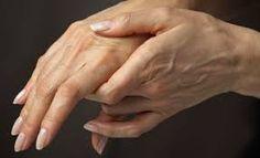 Cara mengobati radang sendi atau artritis