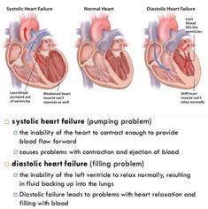 Systolic vs. Diastolic Heart Failure