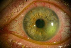 Para una mirada sana previene el herpes ocular con los consejos en nuestro blog  http://www.imagenopticos.com/blog/entry/herpes-ocular