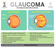 Hoy conmemoramos el Día Internacional del Glaucoma | Servicios de Salud de Yucatán