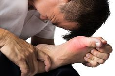High uric acid does require treatment from a doctor, but to support the treatment, there are several natural gout remedies that you can try at home. Natural gout remedy is believed to help relieve symptoms, while reducing uric acid levels in the body. Home Remedies For Gout, Natural Remedies For Gout, Gout Remedies, Health Remedies, Gout Diet, Uric Acid, Pain Relief, Health Tips, Legs