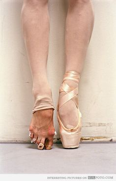 Ballerina feet - Picture of damage the ballet does to the feet of ballerinas.