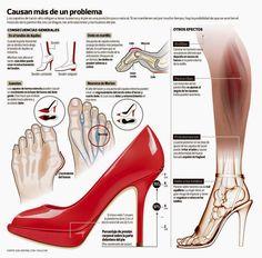 Enfermedades que pueden causar el uso de tacones