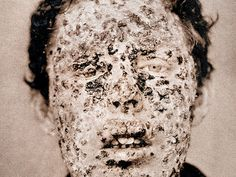 The Burns Archive-Historical Medical Photos This is why we vaccinate. SMALLPOX NY CITY EPIDEMIC, 1881 Victims of the smallpox epidemic in More people died from smallpox than any other disease in history. Old Photos, Vintage Photos, Foto Art, Medical History, Interesting History, World History, Historical Photos, Human Body, In This World