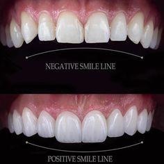 Dentist Quotes, Dental Photography, Dental Veneers, Porcelain Veneers, Smile Makeover, Smile Design, Perfect Smile, Cosmetic Dentistry, Dental Implants