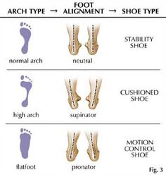 Gait analysis can help you choose the right shoes to avoid injury and soreness