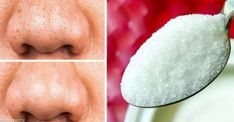 12 Natural Products to Help Your Skin Stay Forever Young Beauty Tips For Skin, Natural Beauty Tips, Organic Beauty, Beauty Make Up, Beauty Care, Beauty Skin, Skin Care Tips, Beauty Hacks Nails, Beauty Hacks For Teens