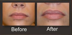 Permanent Lip Color | Permanent Cosmetics | Permanent Makeup | Micropigmentation
