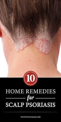 10 Effective Home Remedies For Scalp Psoriasis https://www.beauty-secrets.us/product/101homemade-remedies/