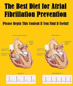 A heart-healthy diet is key to atrial fibrillation prevention and can help prevent stroke in the long run .. http://slimmingtips.givingtoyou.com/diet-for-atrial-fibrillation