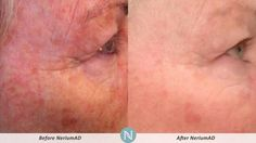 More Real Results with NeriumAD!