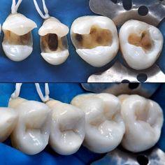 Resina Composta de hoje ✅ #EmpressDirect #ResinaComposta #Composite #OdontologiaEstética #BiomimeticDentistry #CosmeticDentistry #AdhesiveDentistry