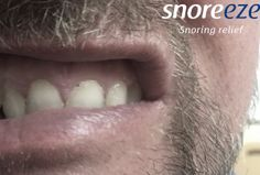 Are you guilty of teeth grinding? If you wake up in the morning with sensitive teeth, or tight jaw muscles, the answer is probably yes. But it can also indicate a secret sleep disorder that you might not know you have: sleep apnoea. Teeth Grinding, Sleep Apnoea, Tooth Sensitivity, Snoring, Teeth Whitening, Muscles, Tooth Bleaching, Muscle