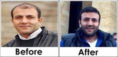 Saç Ekimi - Sakal Ekimi - Kaş Ekimi - Hair Transplant - Hair Implant - Hair Restoration - Beard Transplant - Eyebrow Transplant