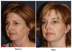 A brow lift by Charlotte's best facial plastic surgeon Plastic Surgery Facts, Plastic Surgery Procedures, Endoscopic Brow Lift, Look Younger, Brows, Facial, Charlotte, Age, Tired